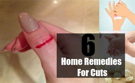 6 top home remedies for cuts treatments and cure