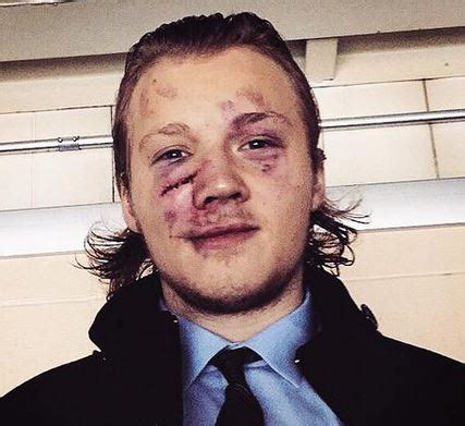 photo: jets' olsen shares battle scars from tough day in