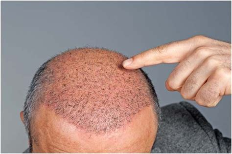 does fue hair transplant work best hair transplant centers in hyderabad our top 10