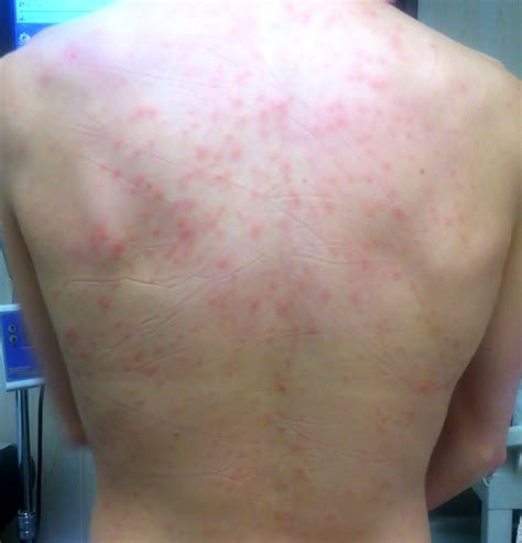 Hives Detox Symptom by How Acupuncture Treats Skin Hives Tao Of Medicine
