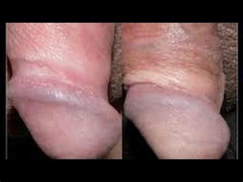 fotos de deportistas con pene erecto papulas perladas youtube