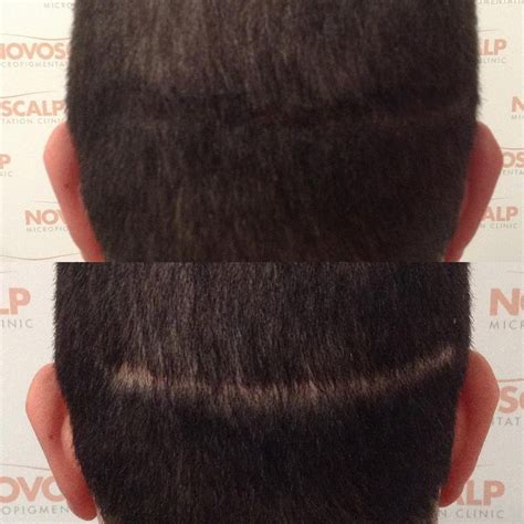hair transplant innovations 98 best images about scalp micropigmentation on pinterest