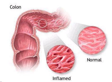 Crohn S Stool by Nutritional Management Of Colitis And Crohn S Disease