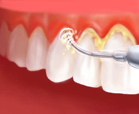 Pasta Gigi Nasa Hilangkan Karang Gigi arang hilangkan karang gigi infogigi