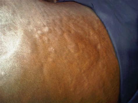 Skin Lumps On Horses | care line corner lumpy bumpy bits