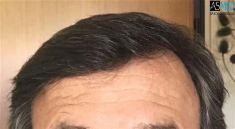 hair plugs v hair transplant image