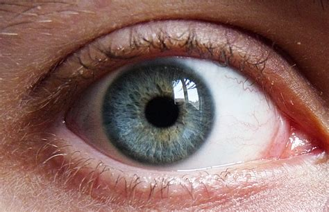 blue green ebola found to linger in the eye