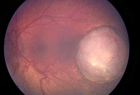 retinoblastoma symptoms, diagnosis and treatment   bmj