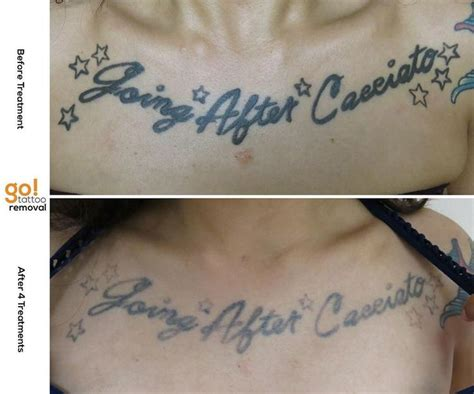 chest tattoo raised 679 best images about tattoo removal in progress on