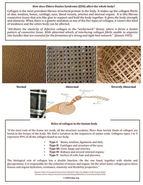 history of pattern formation theory attributes the elasticity of defective collagen to the