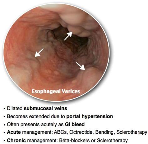 25 best ideas about esophageal varices on
