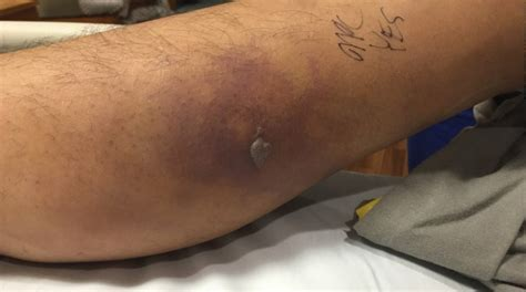 tattoo healing time swimming تصاویر شنا با خالکوبی جان مرد جوان را گرفت