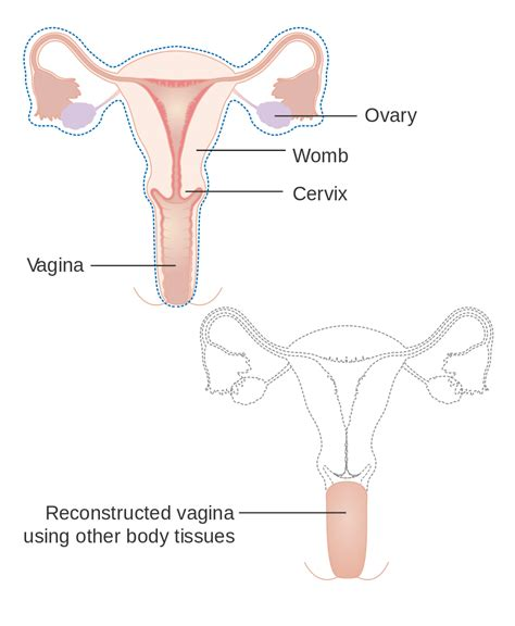 vaginia diagram file diagram showing a radical hysterectomy with a