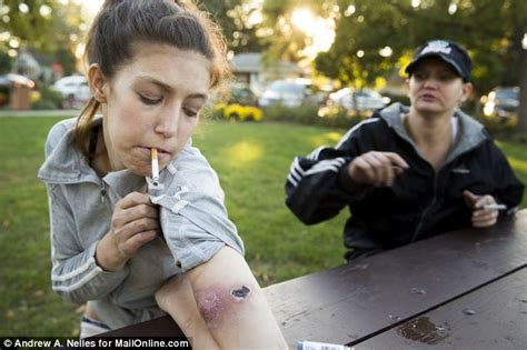 Krokodil drugs before and after agony amber said the sores on my
