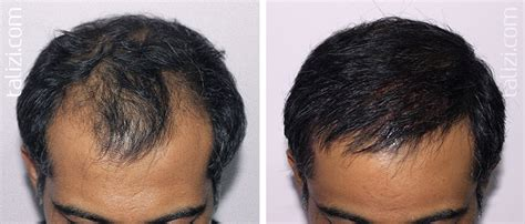 how thick is 1000 hair graft пересадка волос на голове цена