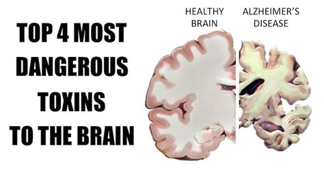Detox Toxins From Brain by Most Dangerous Toxins To Brain Avoid These 4 Items From