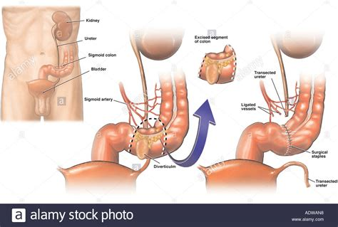 removal of colon section sigmoid colectomy colon removal with iatrogenic