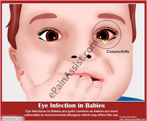 eye infection symptoms bacterial infection in babies