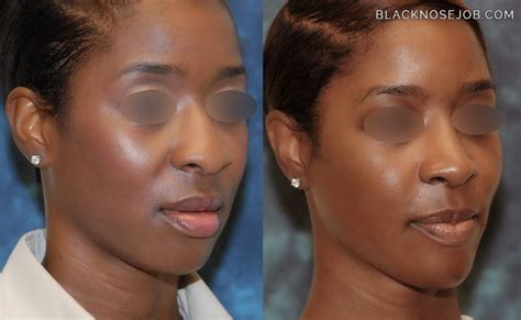 does no no work african americans african american rhinoplasty los angeles black nose surgery