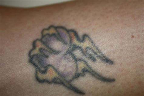 tattoo vanish reviews pictures for vanish laser removal and skin