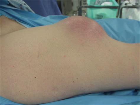 growth on s leg tumor lump leg