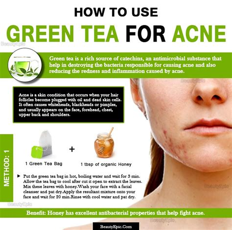 Acne Malam Acne Green Tea how do you use green tea for acne