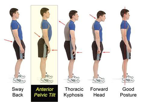 basics posture    hurt  tyler kleinhuizen cscs eat  perform