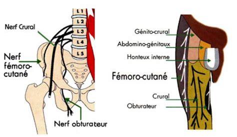 un médecin du sport vous informe: la méralgie paresthésique