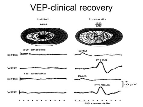 pattern appearance vep v isual evoked potentials