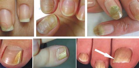 fotos uñas pintadas manos para unas creativos diseos de uas cortas with para unas