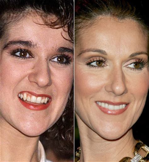 chatter busy celine dion plastic surgery