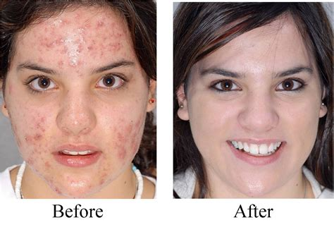 Salep Hydroquinone albuquerque acne treatments acne treatments for all skin