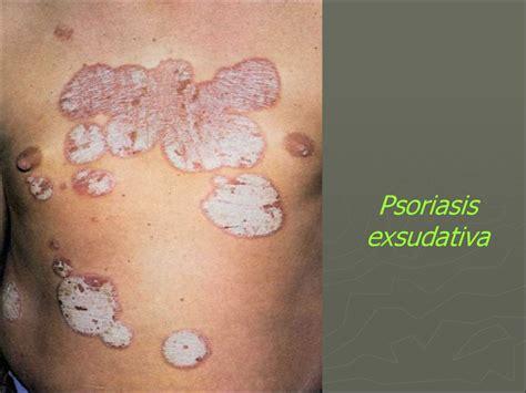 Psoriasis. Classification of psoriasis - презентация онлайн Female Urinary System Anatomy