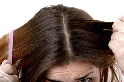 Hair Dryer Cause Dandruff scalp vs dandruff how to tell the difference and