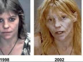 heroin bilder vorher nachher fressen seele auf meth