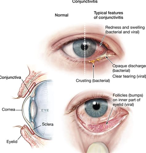 8 home remedies for common eye diseases and disorders