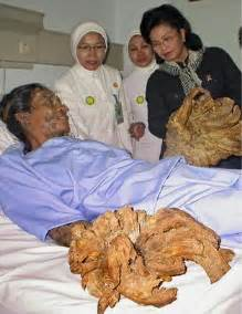 Tree man before and after treatment pictures new health advisor