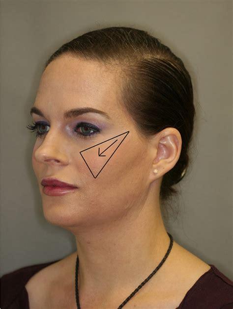 high cheek face πώς να λεπτύνεις το χαρακτηριστικά του προσώπου σου με το