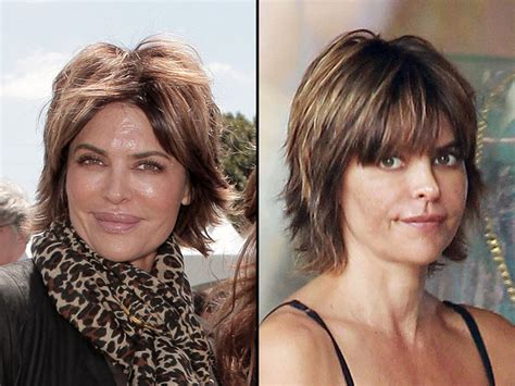 Chatter Busy: Lisa Rinna Lips Before And After