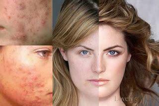 Cara Menghilangkan Flek Hitam Dan Bintik Noda Di Wajah cara menghilangkan noda hitam di wajah kecantikan