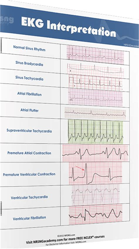 ecg pattern analysis for emotion detection ekg dysrhythmias cheat sheet for nurses pictures to pin on