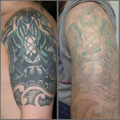 tattoo removal before and after healing tattoo collection blog modern body art part 2
