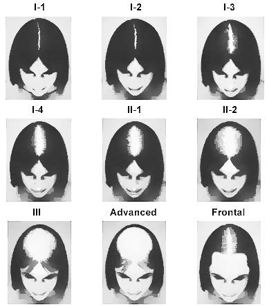 female pattern hair loss scale what is the ludwig scale hair transplant mentor