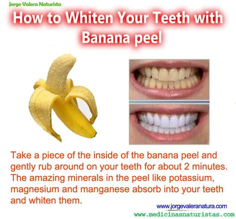 7 Reasons To Get Your Teeth Whitening Procedure Done By A Pro by How To Whiten Your Teeth With Banana Peel Health Anti
