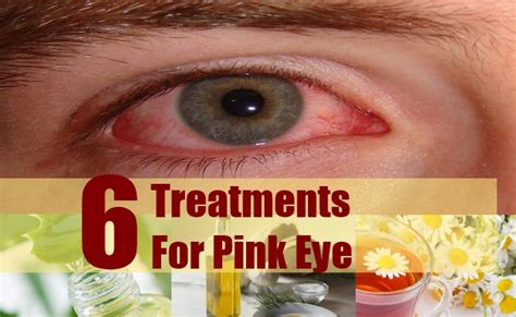 6 treatments for pink eye remedies to treat pink