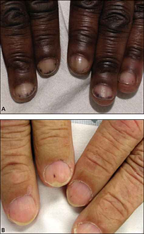 nail bed keratinization
