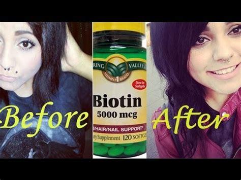 Biotin 10 000 Mgc 100 Capsul biotin hair growth biotin hair growth 10 000 mcg