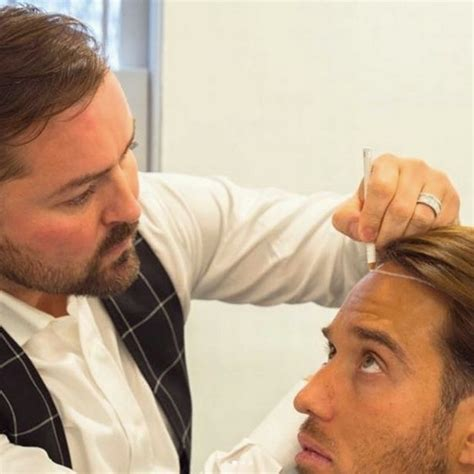 jobs in hair transplant technicianjobs london james lock reveals results of 163 5 000 ear job and hair