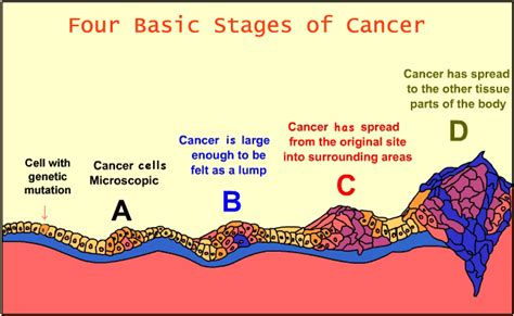 diagrams of breast cancer home national cancer centre singapore