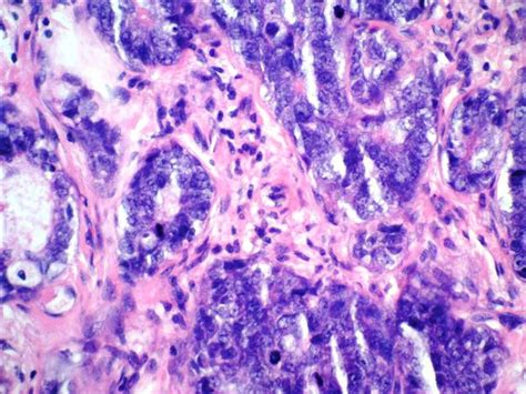 Cystic Lymphangioma Pathology Outlines by Pathology Outlines Adenoid Cystic Carcinoma Solid Variant